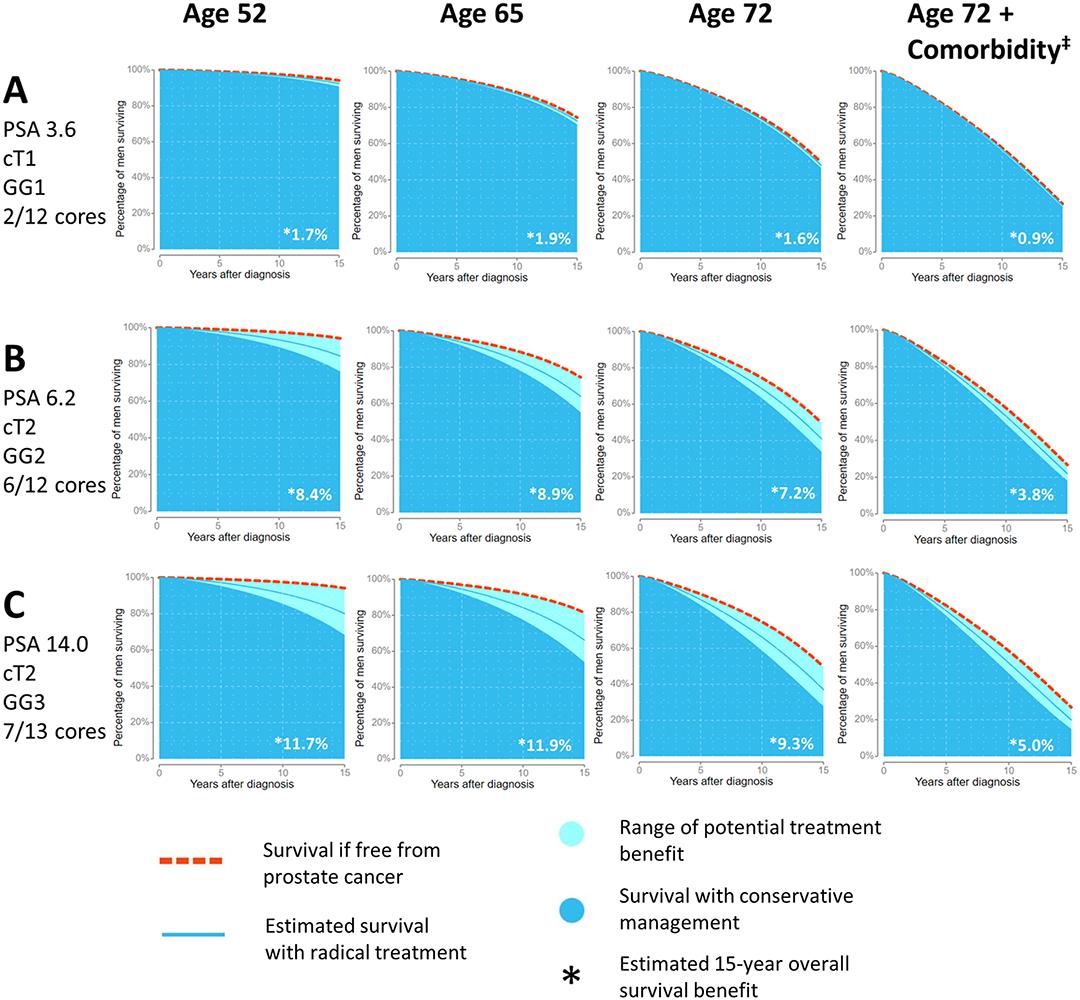 Resultados da ferramenta Predict Prostate