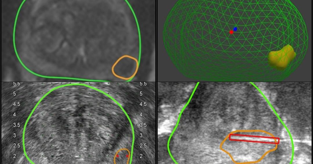 Ultrassom com delimitação da área de um tumor de câncer de próstata
