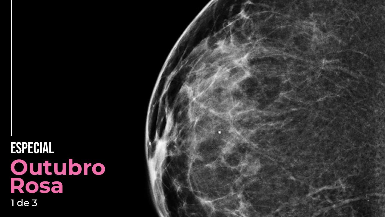 Mamografia 3D da região craniocaudal esquerda